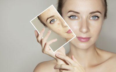 Trattamento viso lenitivo detossinante